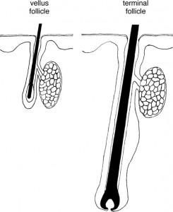 Vellus Hair versus Terminal Hair